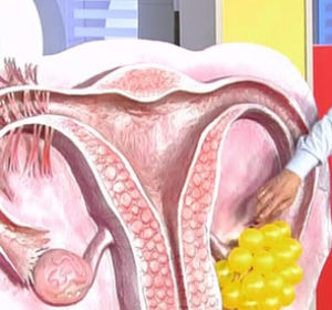 Поликистоз яичников: вопросы без ответов