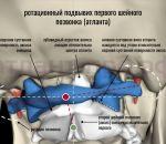 Подвывих шейного позвонка: причины, симптомы, лечение