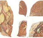 Грибковая пневмония — причины, симптомы и лечение