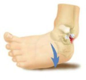 Перелом лодыжки при наличии смещения — тяжелая травма, требующая серьезное лечение