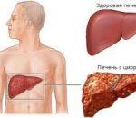 Симптоматика и лечение заболевания Коновалова-Вильсона