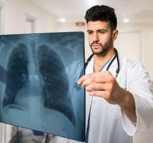 Жидкость в легких: причины, симптомы, лечение и последствия