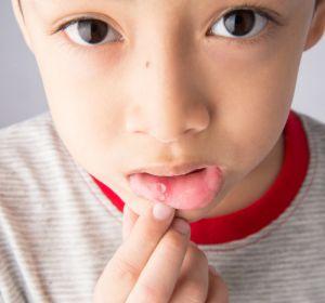 Язвенный стоматит – лечение у взрослых аптечными препаратами и народными рецептами