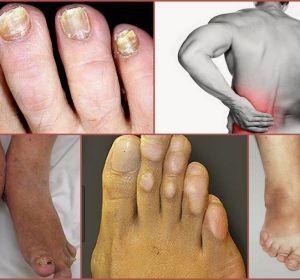 Мазь при артрите пальцев рук — список препаратов с описанием свойств и видов