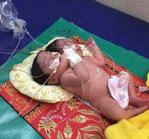 В Камбодже родились сиамские близнецы с одним телом и двумя головами