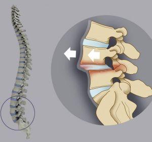Спондилолистез шейного и пояснично-крестцового отдела позвоночника: что это, лечение