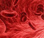 Сепсис — причины, симптомы и лечение заражения крови
