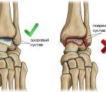 Лечение артроза мелких суставов кистей рук: средства и методы при симптомах