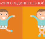 Дисплазия соединительной ткани: причины, симптомы и лечение