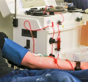 Плазмаферез — польза и вред мембранного, аппаратного, каскадного, донорского или центрифужного
