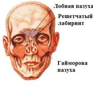 Клиническое течение и медикаментозное лечение гайморита без прокола