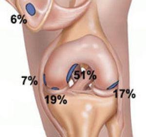 Рассекающий остеохондрит плечевого сустава: симптомы, лечение болезни Кенига