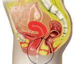 Кольпит — причины возникновения, симптомы и методы лечения