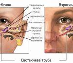 Мастоидит: причины, симптомы, лечение, профилактика