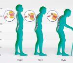 Болезнь Шейермана-Мау — причины, симптомы и лечение