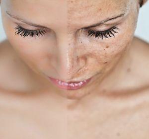 Актинический кератоз кожи: что это такое, симптомы, лечение солнечного кератоза