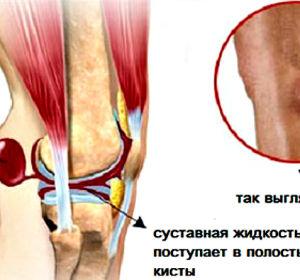 Киста Бейкера коленного сустава — симптомы, диагностика, лечение упражнениями и народными средствами
