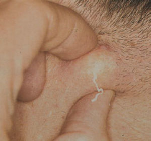Как лечить жировики на половых губах?