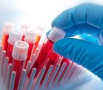 Ученые разработали новый анализ, при помощи которого можно будет диагностировать онкологическое заболевание на ранней стадии развития