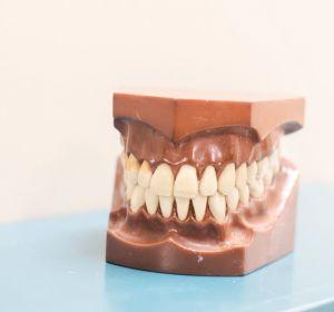 Прощай, вставная челюсть. Ученые придумали альтернативу зубным имплантатам