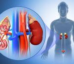 Причины хронического пиелонефрита у женщин и факторы риска
