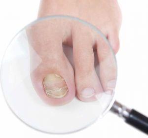 Грибок ногтей у ребенка — признаки, медикаментозные препараты и рецепты народной медицины для лечения