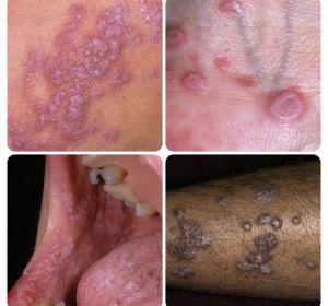 Болезнь Дарье: виды, причины, симптомы и лечение фолликулярного дискератоза