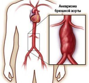 Чем опасна аневризма брюшной аорты и как её вылечить?