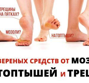 Крем для пяток от трещин — список эффективных лекарственных средств для смягчения кожи стоп