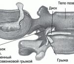 Симптомы и лечение грыжи позвоночника без операции