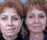Неврит лицевого нерва — причины, симптомы и лечение
