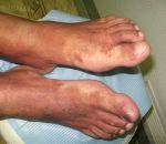 Гемосидероз кожи ног, тела: симптомы, лечение болезни Шамберга у женщин и мужчин