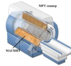 Магнитно-резонансная томография коленного сустава: описание и стоимость процедуры