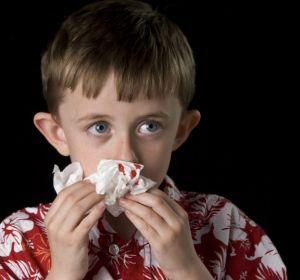 Носовые кровотечения у детей – причины появления