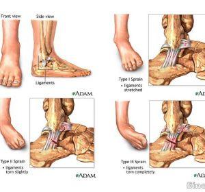 Боль в голеностопном суставе: причины и лечение, что делать