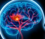 Может ли быть инсульт при нормальном давлении у мужчин или женщин — виды апоплексического удара