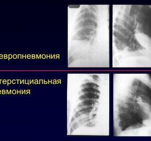 Таблетки от кашля с термопсисом — дозировка, противопоказания, побочные эффекты и аналоги