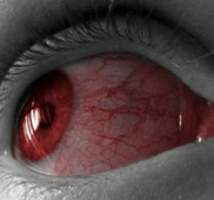 Лопнул сосуд в глазу: стоит ли волноваться и лечиться