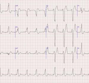 Расшифровка ЭКГ ребенка или взрослого — структура кардиограммы