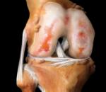 Гонартроз коленного сустава — симптомы и проявления болезни