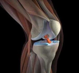 Как справляться с болью колена с внутренней стороны