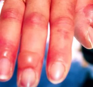 Термический ожог — степени, симптомы и методы лечения