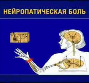 Разновидности, причины и способы лечения нейропатической боли