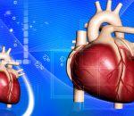 Тампонада сердца: причины, симптомы, лечение и первая помощь