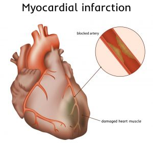 Инфаркт миокарда — первая и неотложная помощь при инфаркте