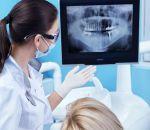 Рентген зубов: что показывает, вредно или нет при беременности, панорамный снимок