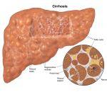 Алкогольный цирроз печени: причины, симптомы, лечение