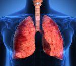 Диффузный пневмосклероз: причины, симптомы, лечение