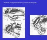 Ушивание прободной язвы желудка — техника и методы выполнения, реабилитация