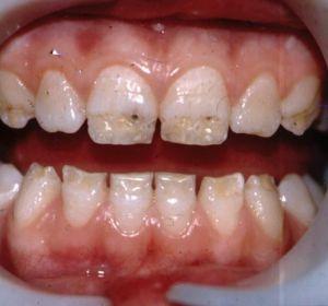 Гингивит – лечение и симптомы у детей и взрослых, применение зубных паст, аппликаций и медикаментов
